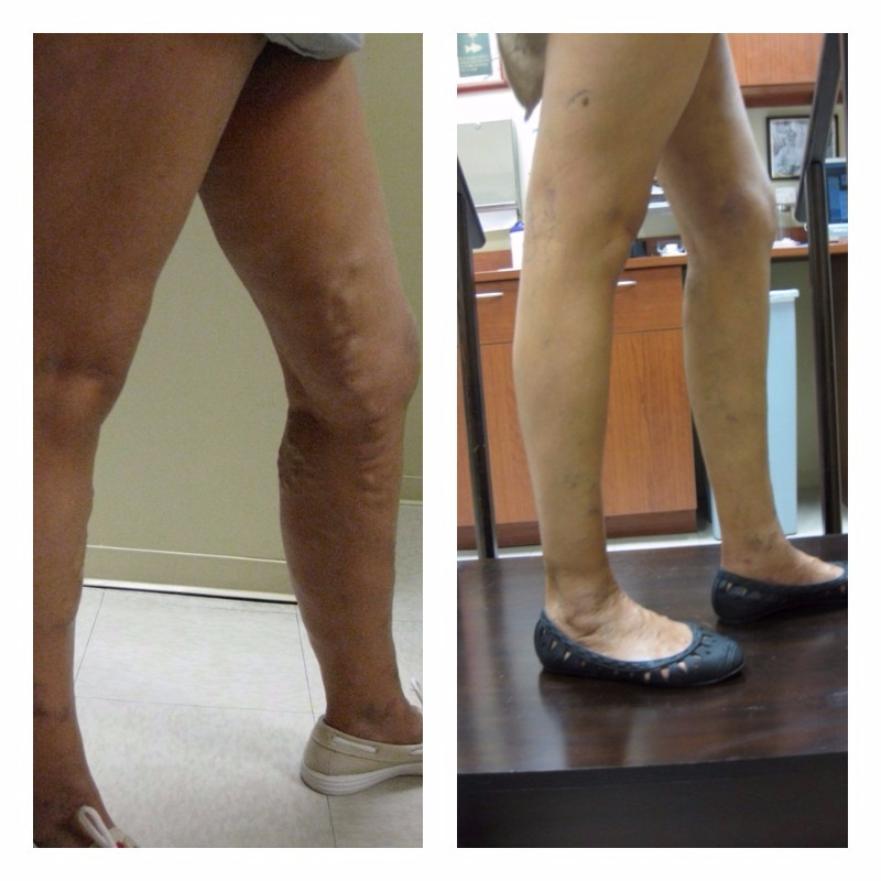 Phlebectomy Varicose Veins Treatment