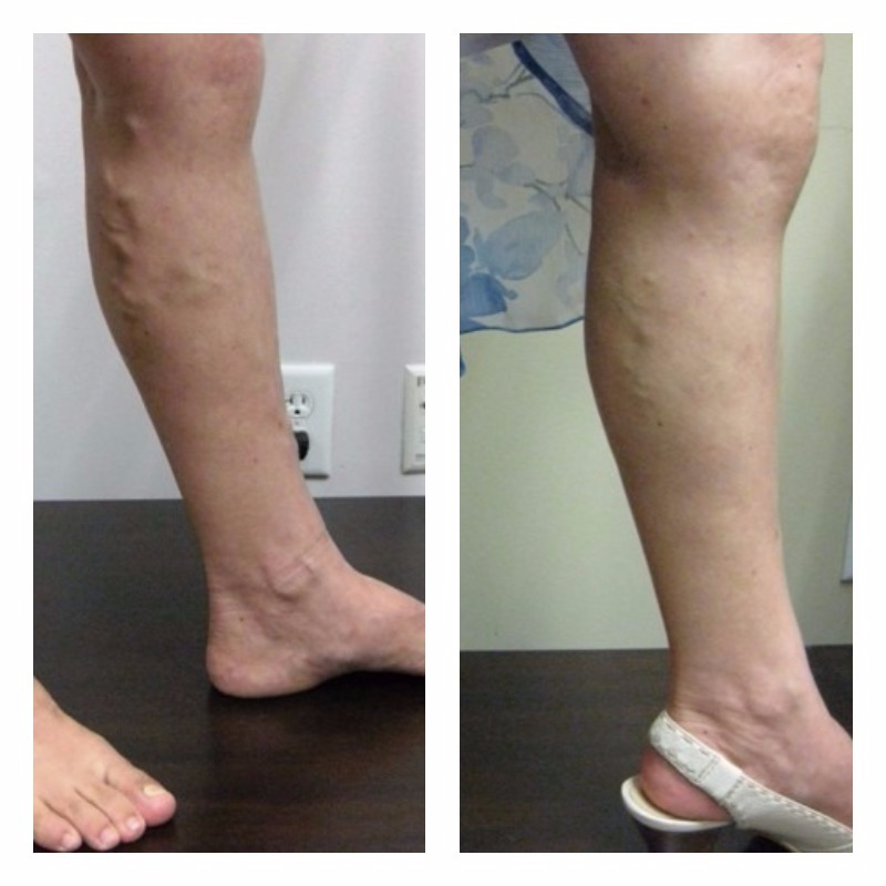 Heaviness, Pain and Bulging Varicose Veins