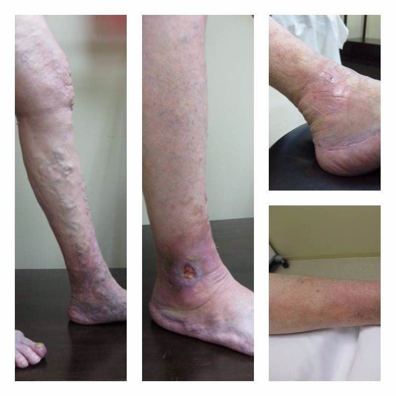 Bulging Varices and Non-Healing Leg Ulcers