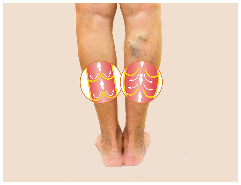 Deep Vein Thrombosis in El Paso, TX