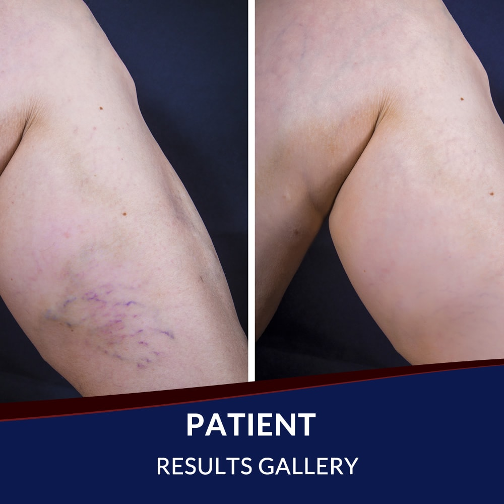 Patient Before After Gallery - Arteries and Veins Center - El Paso, TX