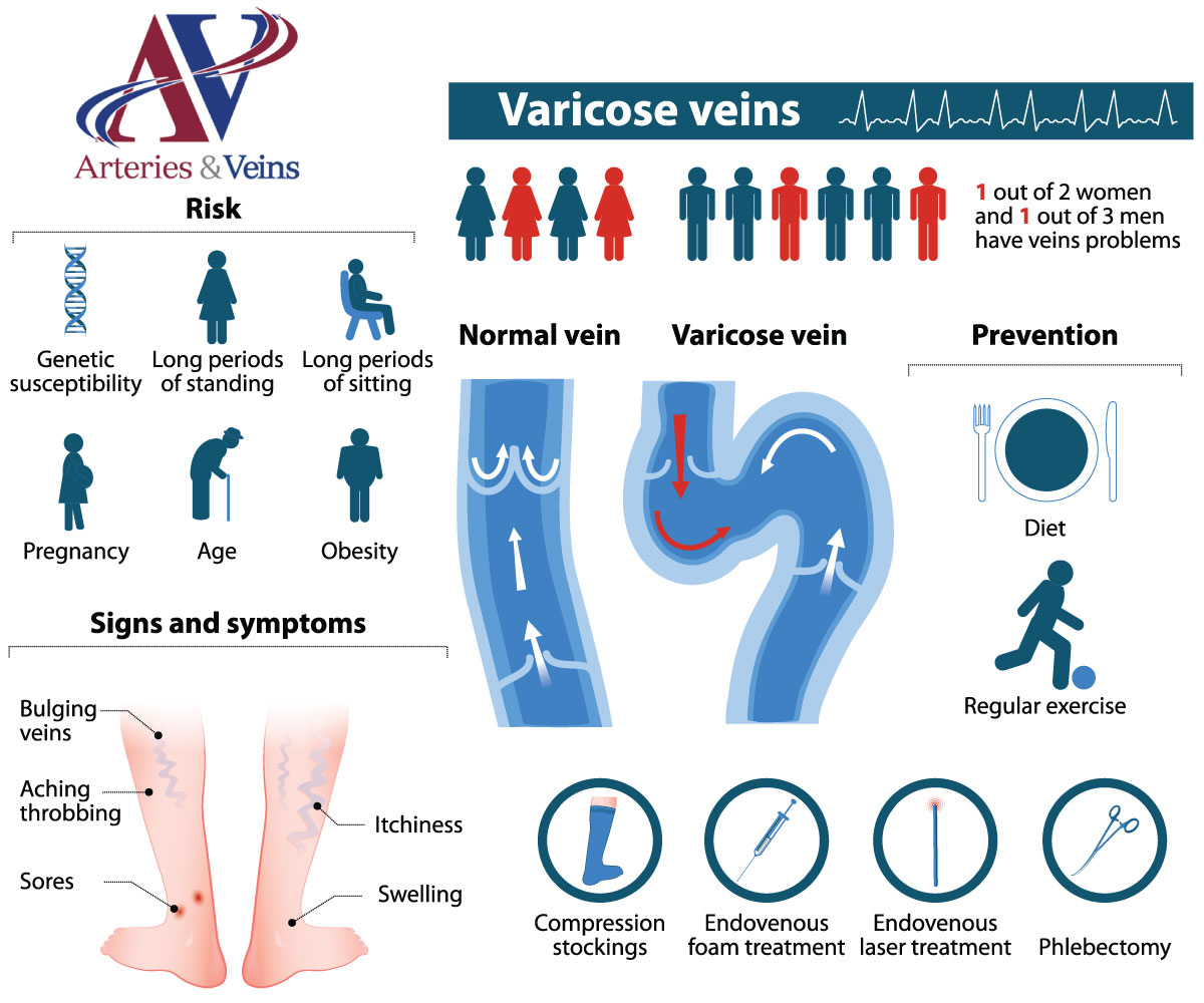 Varicose Veins Treatment in El Paso and Las Cruces